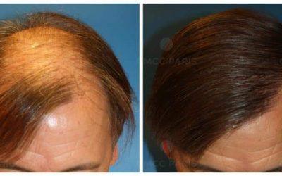 Quelles sont les questions fréquentes autour de la greffe de cheveux ?